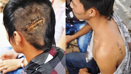 http://imgs.vietnamnet.vn/Images/2011/11/08/19/20111108194214_hinh%202.jpg