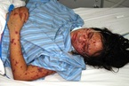 Hà Nội: 4 trẻ tử vong vì viêm màng não mô cầu