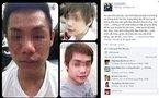 Chàng trai gặp thảm họa vì tiêm thuốc tẩy trắng da