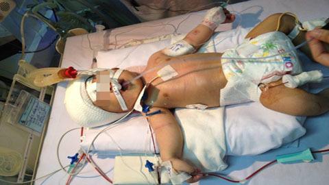 Toàn cảnh sơ sinh bị đâm xuyên sọ được cứu tại bệnh viện