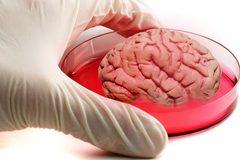 Tạo thành công não người trong phòng thí nghiệm