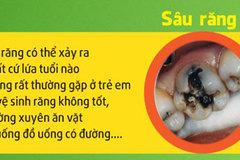 Các bệnh răng miệng thường gặp và cách điều trị