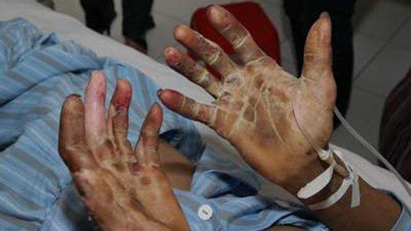 Việt Nam là 'điểm nóng' các bệnh truyền nhiễm
