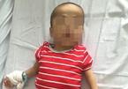 Bé 5 tuổi bị chó cắn đứt 'của quý'