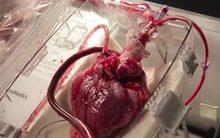 Xem tim người vẫn đập ngoài cơ thể khi chờ cấy ghép
