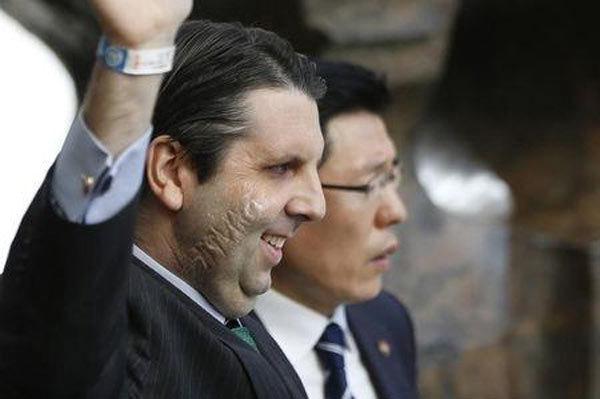 Hàn Quốc, Kim Ki-jong, Mark Lippert, tấn công, án tù