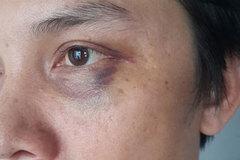 Phóng viên báo Hà Nội Mới tố bị hành hung khi tác nghiệp