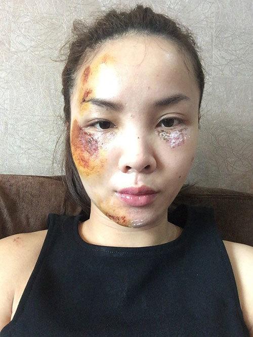 Sốc với khuôn mặt Yến Trang khi gặp tai nạn