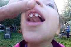 Dùng máy bay điều khiển từ xa để nhổ răng cho con