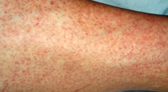 Dấu hiệu cảnh báo sốt xuất huyết