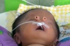 Sức sống mạnh mẽ của em bé có lỗ mũi dị thường