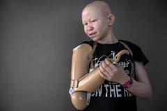 Số phận các bé trai bạch tạng bị chặt tay làm bùa