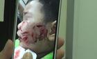 200 mũi khâu trên mặt bé trai 3 tuổi bị chó cắn