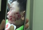 Bé trai 3 tuổi bị chó cắn nát mặt, khâu 200 mũi