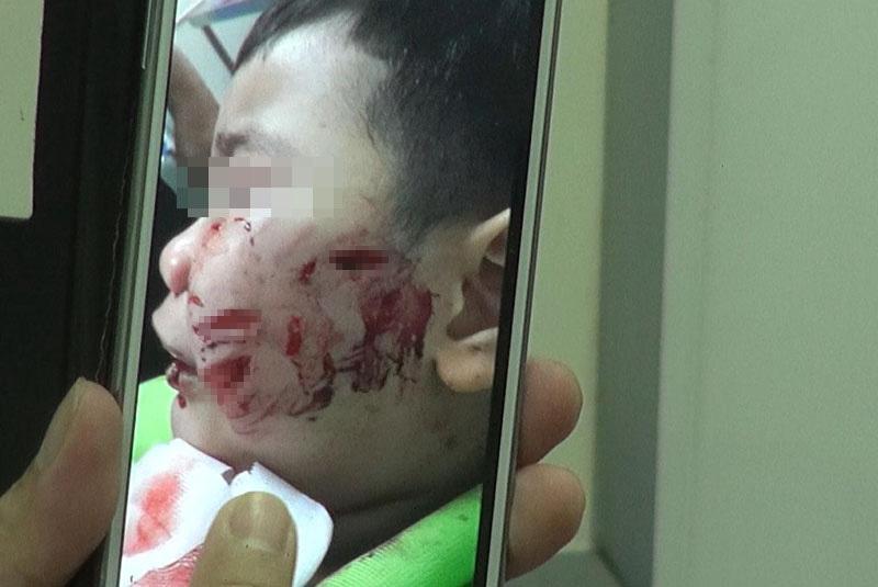 chó cắn, rách mặt, Nhi Đồng 1, bé 3 tuổi