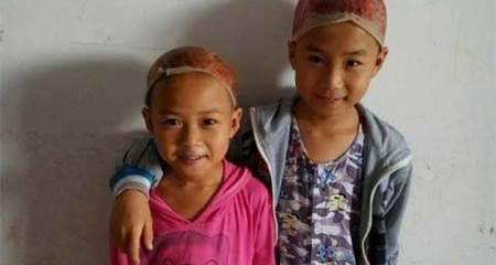 Cảm động hai em bé hiến da đầu cứu cha bỏng nặng