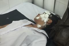TP.HCM: Bắt hung thủ tạt axít 2 nữ sinh