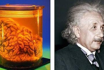 Người não to không thông minh hơn
