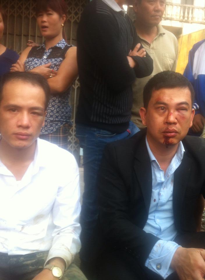 Hai luật sư vụ Đỗ Đăng Dư bị hành hung giữa đường