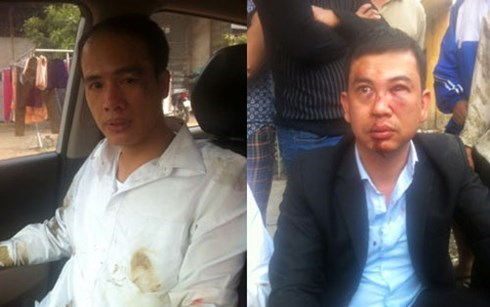 Công an Hà Nội trực tiếp điều tra vụ hành hung 2 luật sư