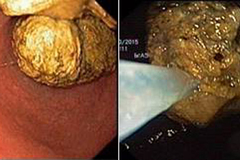 Ăn nhiều hồng, bé 5 tuổi bị kết 'khối u' trong dạ dày