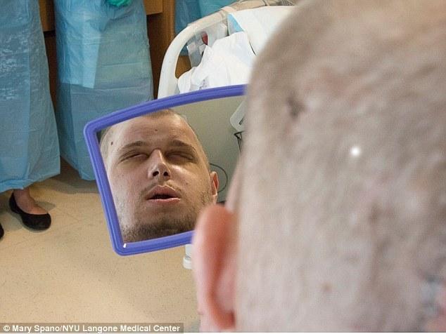 Ca cấy ghép mặt khiến cả thế giới sửng sốt