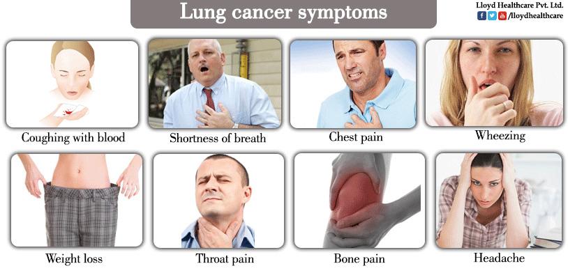 phát hiện, ung thư phổi, triệu chứng