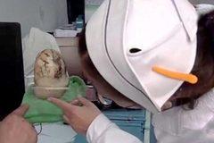 Mổ sỏi mật nặng 1,2kg trong cơ thể cụ ông 70 tuổi
