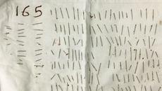 Cô gái tự đâm 165 cây kim xuyên vào vai
