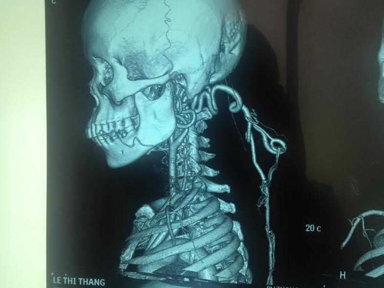 Khối u khủng 4,2 kg 'treo' trên người bệnh suốt 35 năm