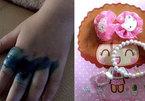 Tay bé gái bị nhiễm trùng nặng vì đeo nhẫn đồ chơi trôi nổi
