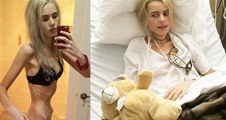 Cô gái suýt chết vì giảm sốc 40kg