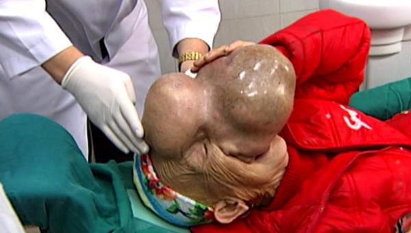 vỡ mắt, khối u khổng lồ, khối u trên mặt, phẫu thuật khối u mặt