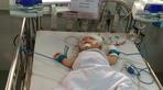 Phẫu thuật lấy máu tụ trong não bé trai bị đâm xuyên sọ
