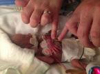Phép màu kỳ diệu nuôi sống bé sơ sinh chưa đầy 5 lạng