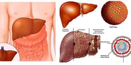 Phương pháp mới điều trị viêm gan virus B, C