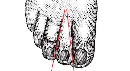 Ngón chân tiết lộ điều gì về tính cách của bạn?