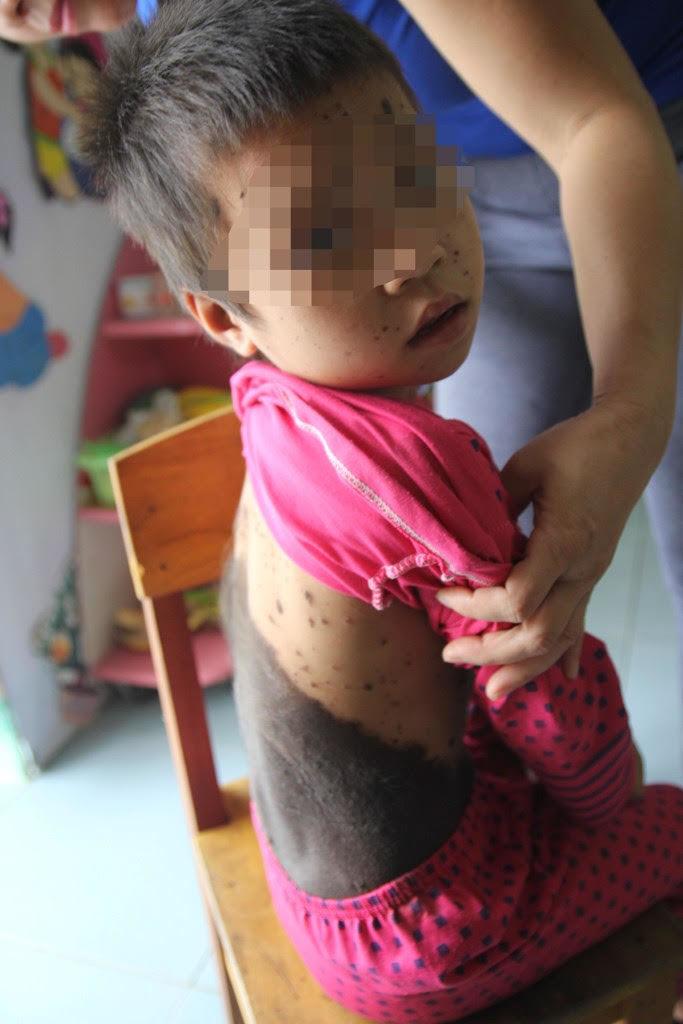Bé gái 5 tuổi mọc lông khắp người
