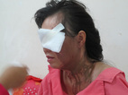 Một phụ nữ bị tạt axit giữa trung tâm Sài Gòn