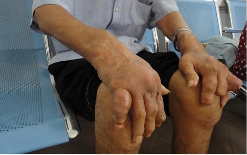 Bệnh gút, tàn phế vì bệnh gút, chế độ ăn cho người bệnh gút, biến dạng tay chân, bến chứng bệnh gút, bệnh gout