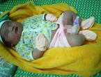 Bé trai 'khủng' chào đời nặng 5,1 kg