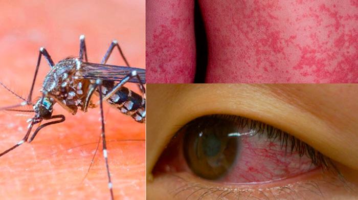 virus Zika, teo đầu, WHO