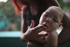 Virus Zika gây teo não tiến sát Việt Nam