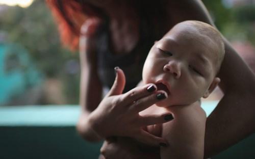 virus Zika, Zika, teo não, đầu nhỏ, WHO, Bộ Y tế