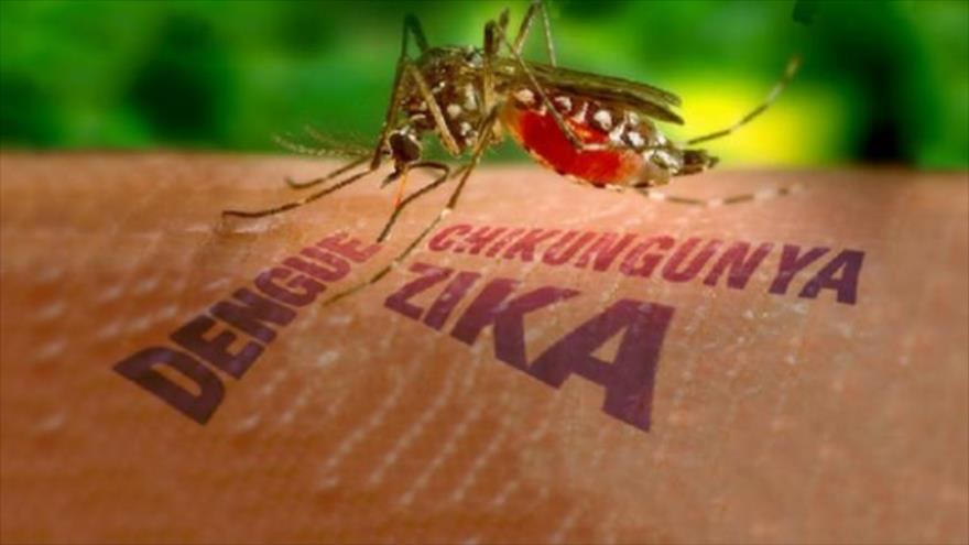 Zika, virus Zika, teo não, tật đầu nhỏ