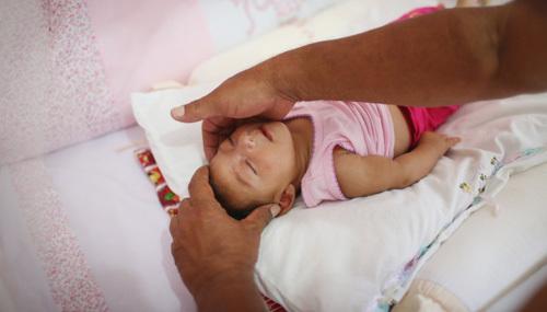 virus Zika, Zika, tật đầu nhỏ, teo não, mù, trẻ sơ sinh