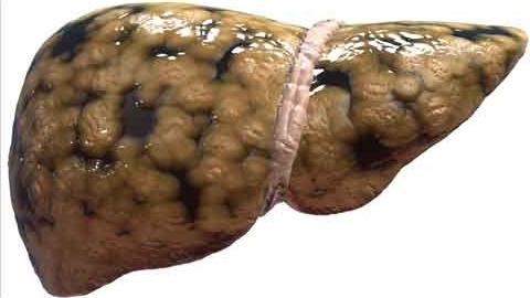 gan nhiễm mỡ, bệnh gan nhiễm mỡ, phòng ngừa gan nhiễm mỡ