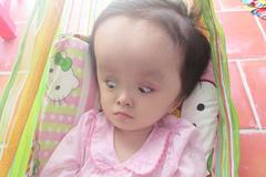 Xót thương bé gái 4 tuổi bị não úng thủy