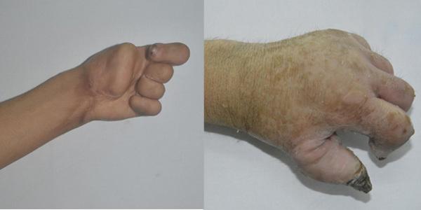 Trần Thiết Sơn, Phẫu thuật tạo hình, dị tật bẩm sinh, từ thiện