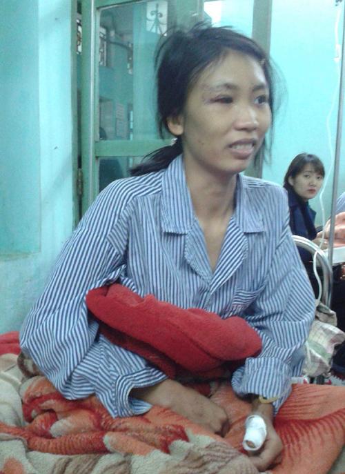 Chấn động Bắc Giang: Chồng chém vợ đứt gân tay, chân